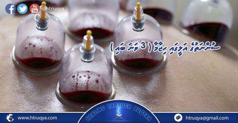 hijama 3